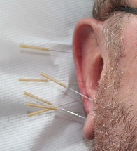 auricular acupuncture for obesity
