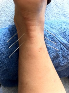 acupuncture needles in a persons wrist